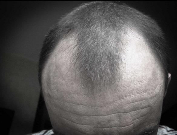 Najbolja nega kose