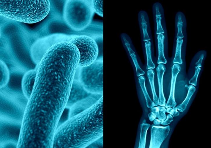 COVID-19 и ревматоидный артрит: как они связаны?
